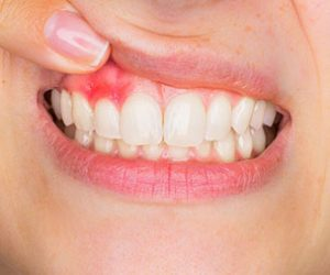 Keeping You Gums Healthy |Affordable Dentistry | Dr Sidelsky