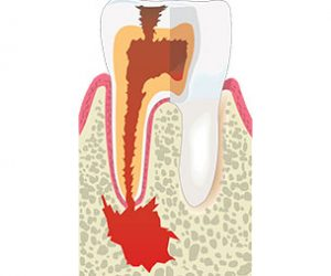 Why Are Root Canals Important? | Root Canal | Dr Sidelsky